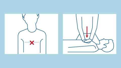 Emergency CPR 'pump' graphic demonstrating the first two steps of CPR.