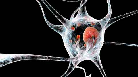 Neurone affected by Parkinson's disease.